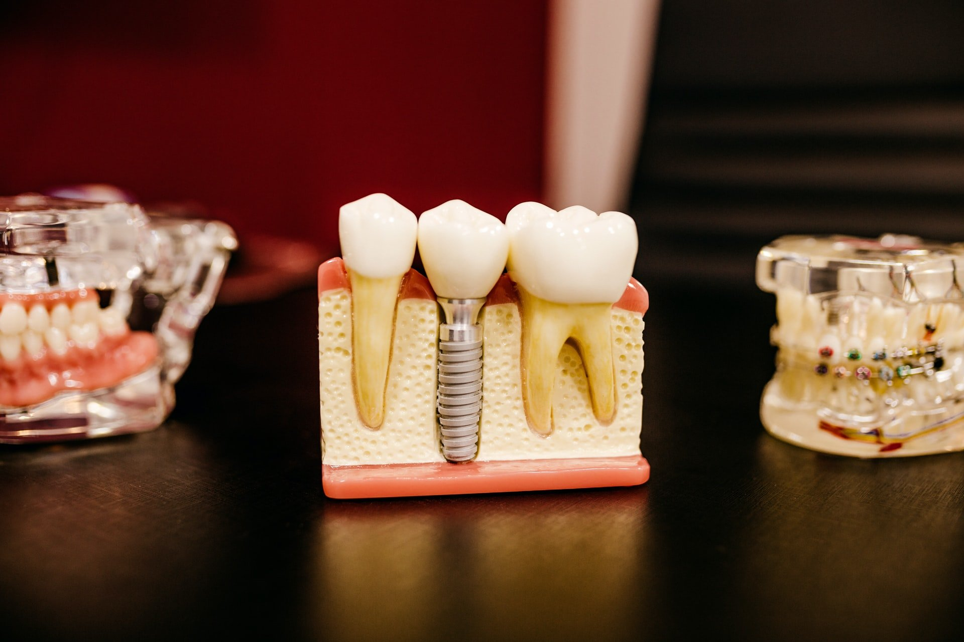 getting dental implants in the uk