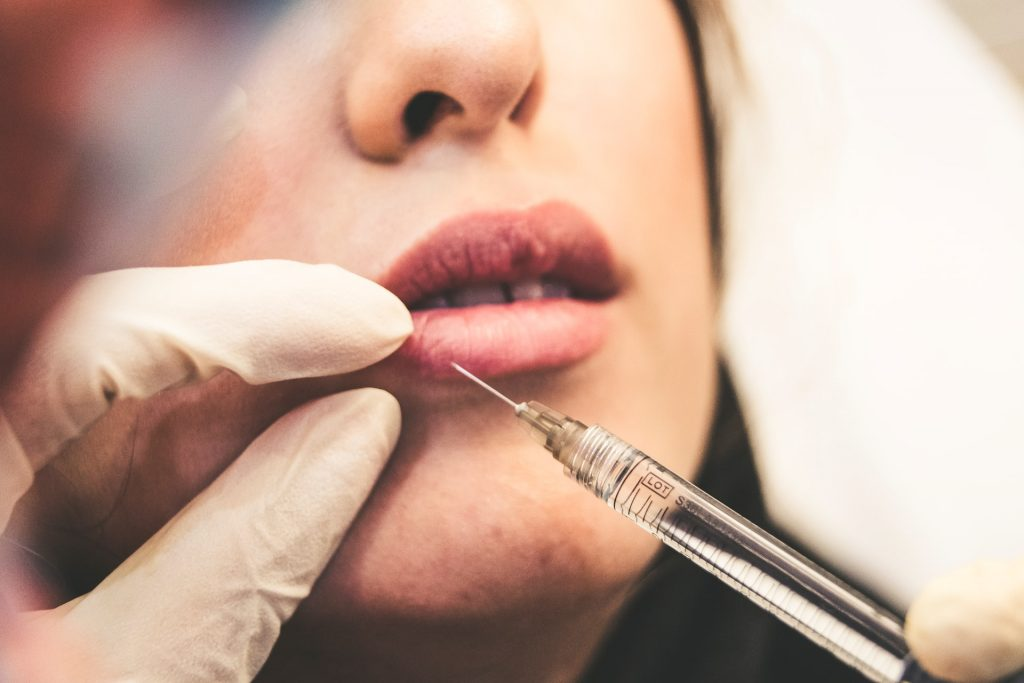 Lady receiving lip filler injections